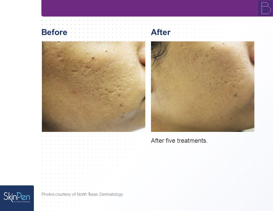 BeforeAfter After two treatments. Photos courtesy of Spectacular Skin