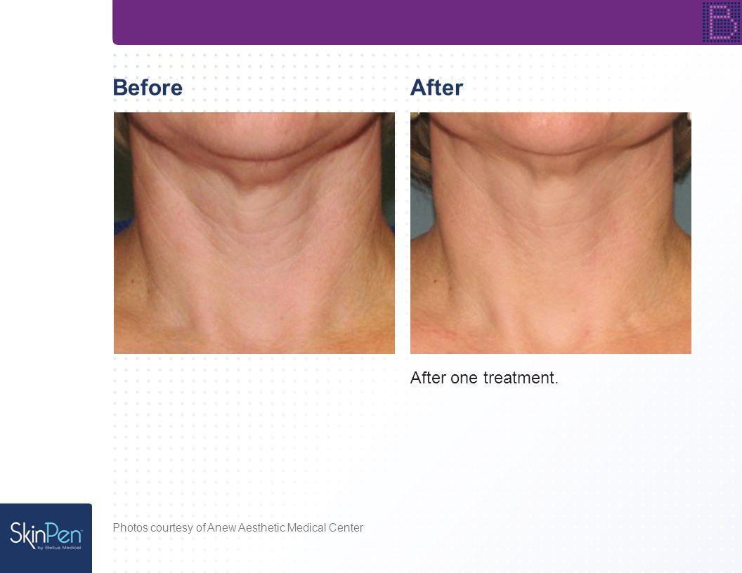 BeforeAfter After one treatment. Photos courtesy of Anew Aesthetic Medical Center