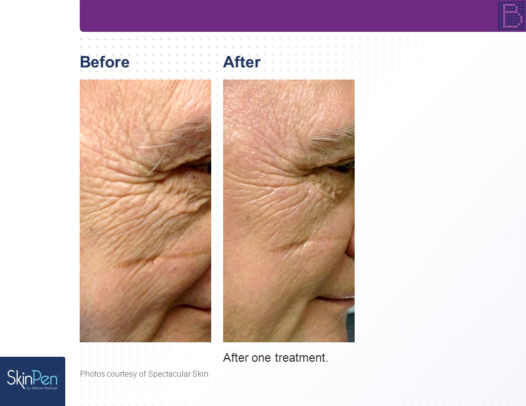 BeforeAfter After one treatment. Photos courtesy of Spectacular Skin