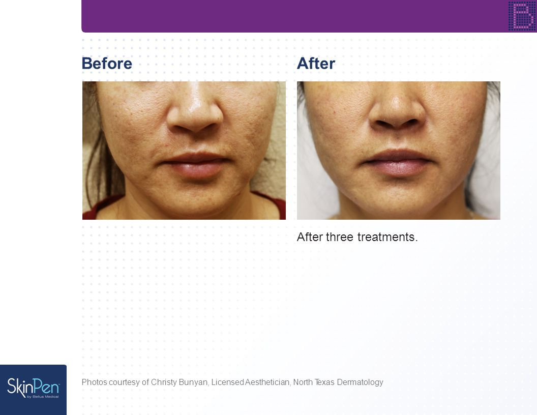 BeforeAfter After three treatments.