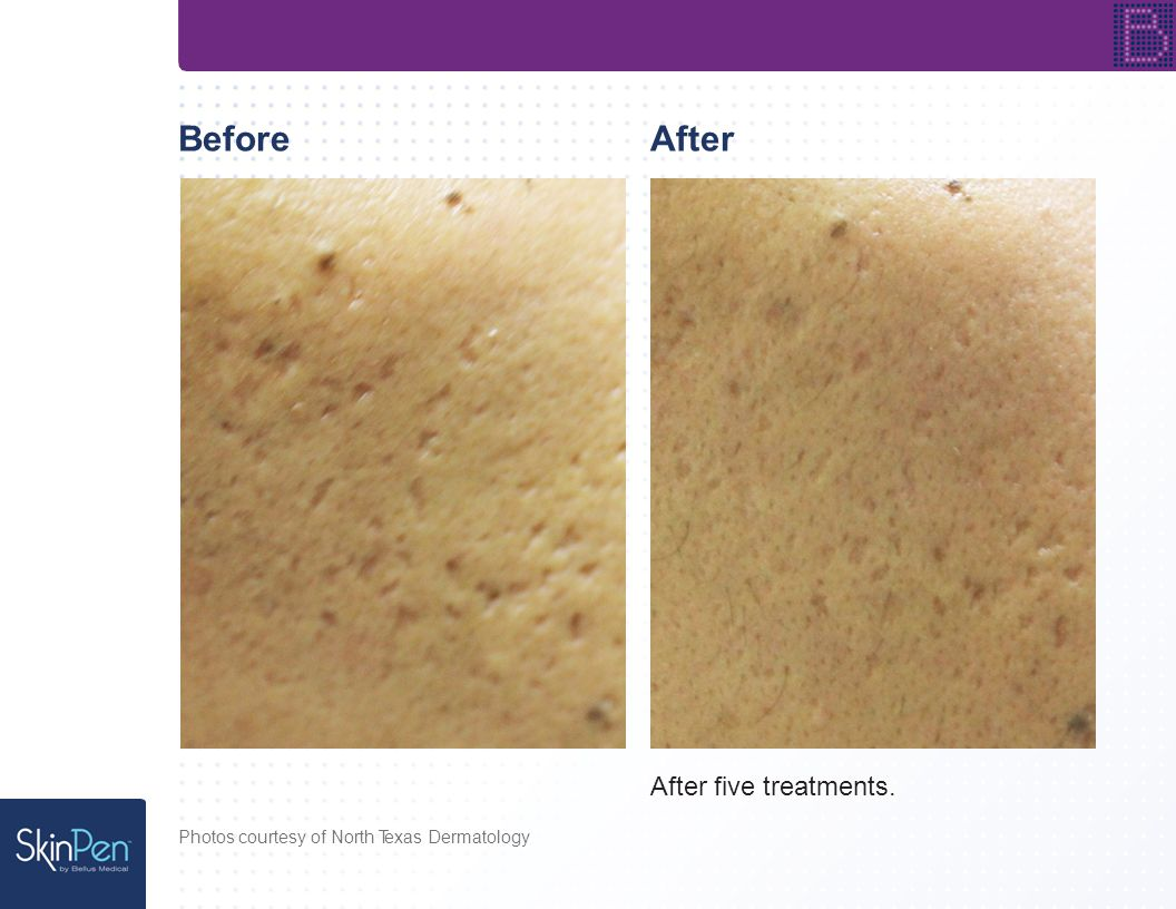 BeforeAfter After five treatments. Photos courtesy of Cathy A. Presnick, A Perfect Complexion, LLC