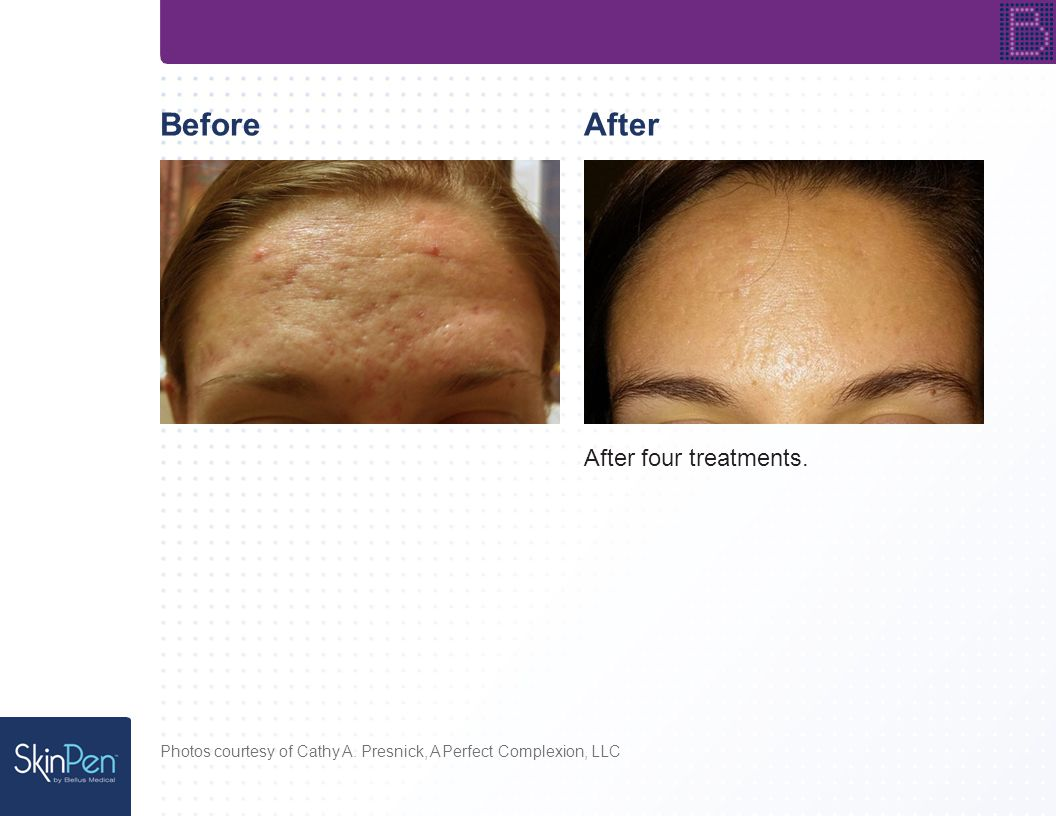 BeforeAfter After four treatments. Photos courtesy of Cathy A. Presnick, A Perfect Complexion, LLC
