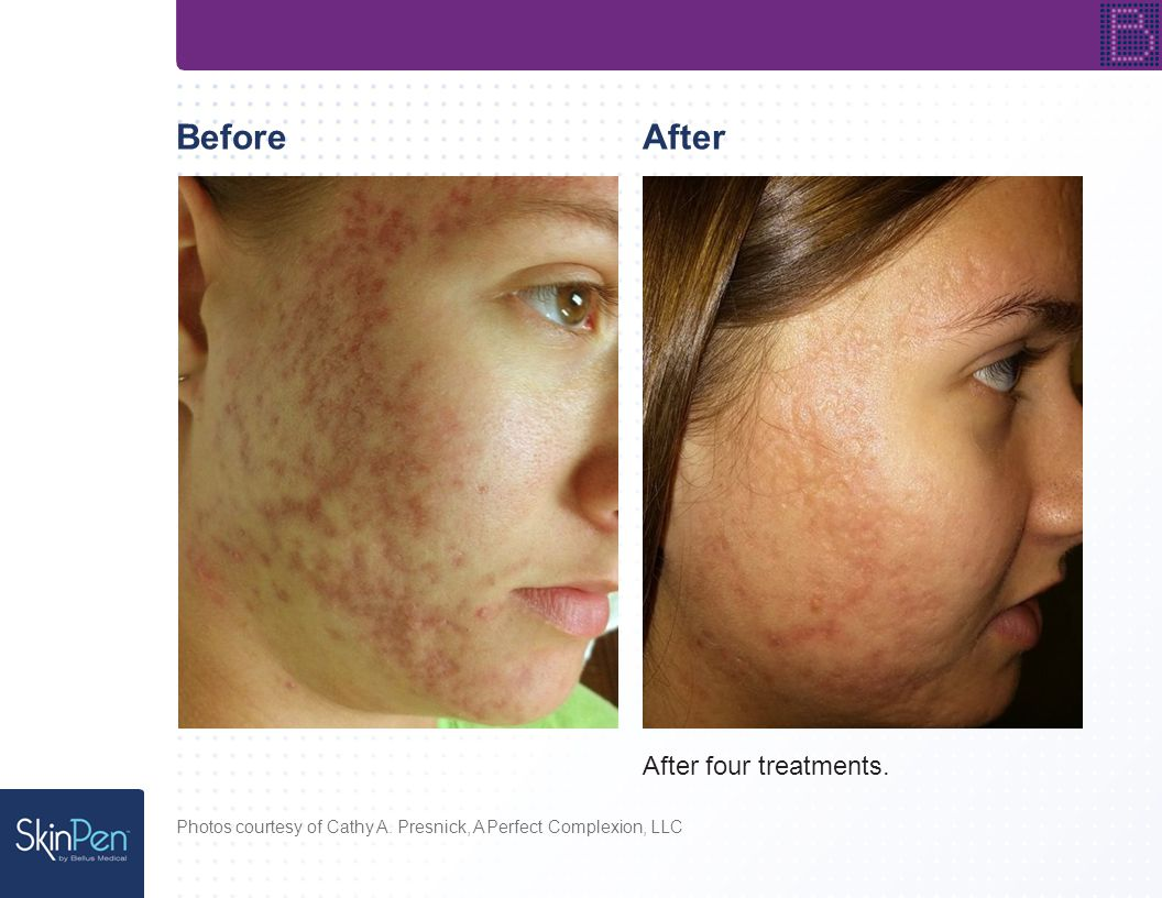 Before Photos courtesy of Spectacular Skin After After one treatment.