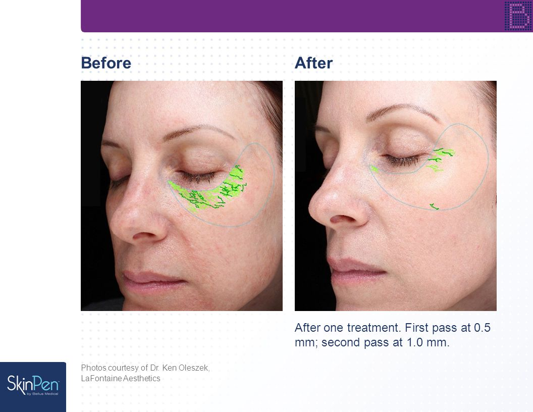 Photos courtesy of Dr.Christie Matter, BeforeAfter Six weeks after one treatment.