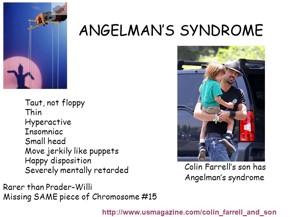 ANGELMAN'S SYNDROME http://www.usmagazine.com/colin_farrell_and_son Colin Farrell's son has Angelman's syndrome Taut, not floppy Thin Hyperactive Insomniac Small head Move jerkily like puppets Happy disposition Severely mentally retarded Rarer than Prader-Willi Missing SAME piece of Chromosome #15