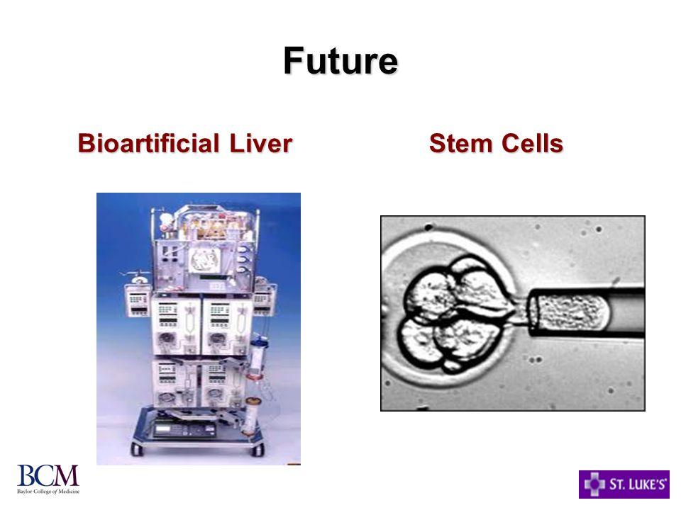Future Bioartificial Liver Stem Cells