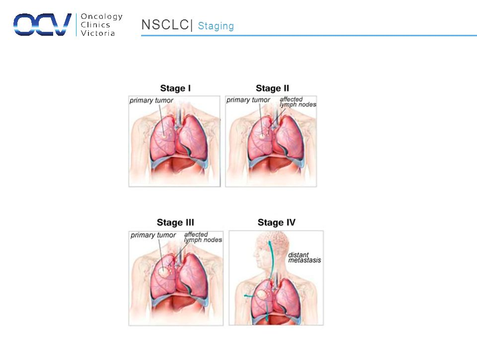 NSCLC| Staging