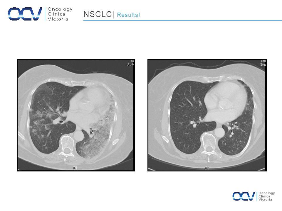 January 2002October 2004 NSCLC| Results!