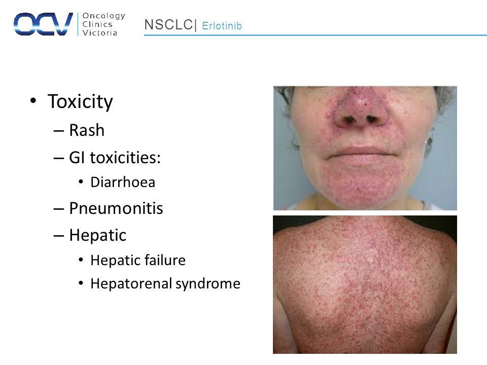 Toxicity – Rash – GI toxicities: Diarrhoea – Pneumonitis – Hepatic Hepatic failure Hepatorenal syndrome NSCLC| Erlotinib
