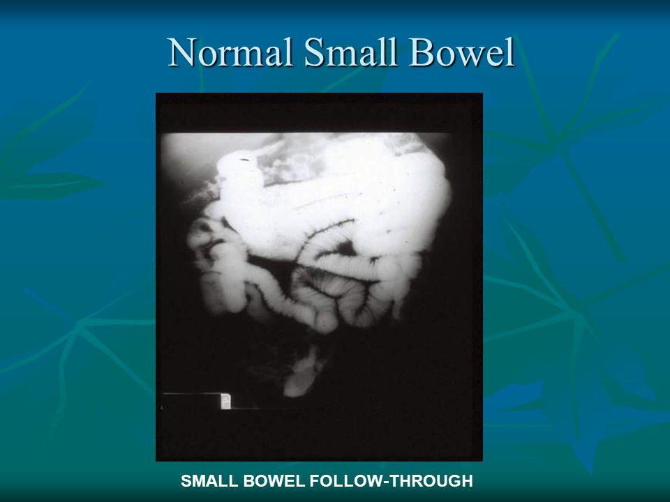 Normal Small Bowel SMALL BOWEL FOLLOW-THROUGH