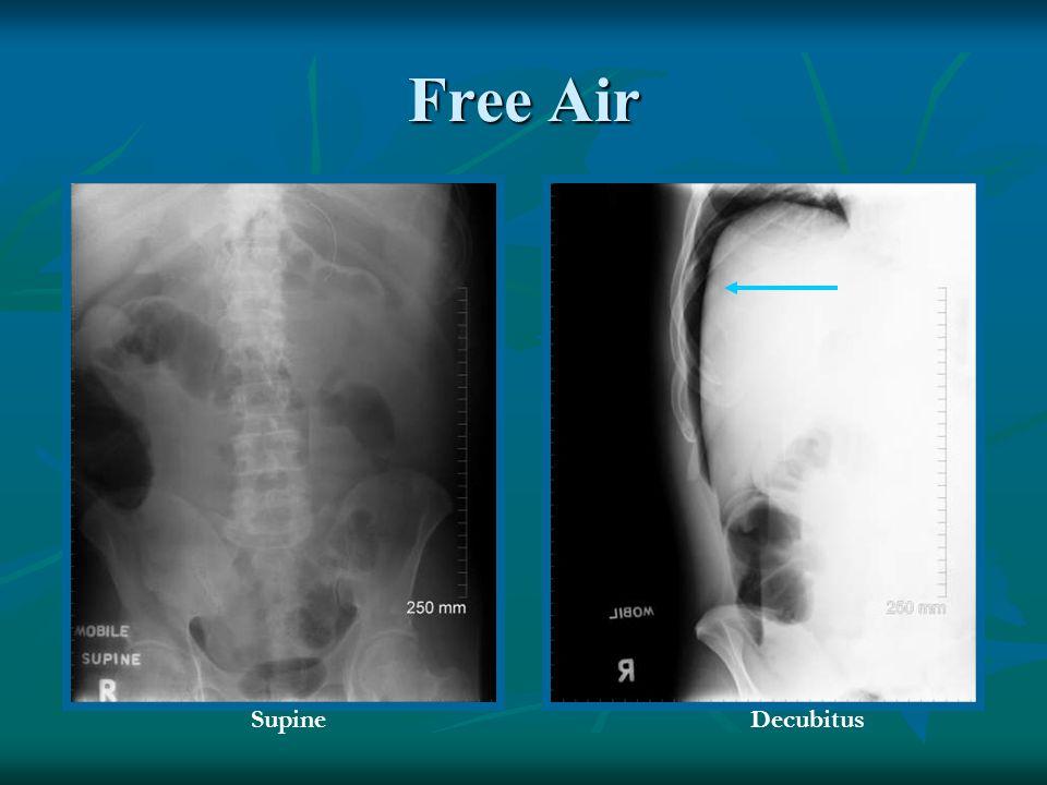 Free Air SupineDecubitus