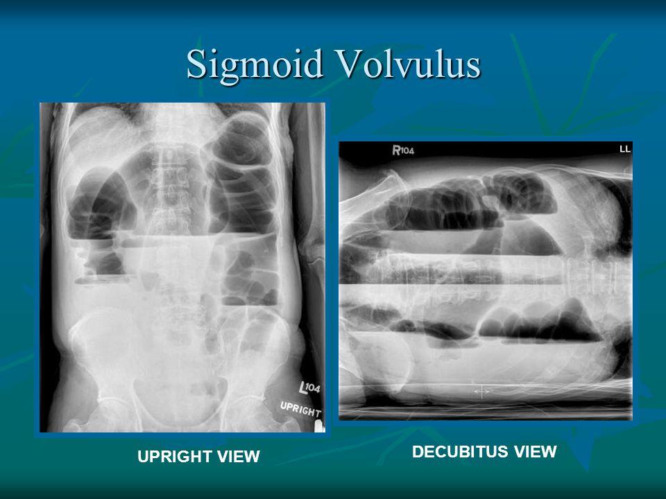 Sigmoid Volvulus UPRIGHT VIEW DECUBITUS VIEW