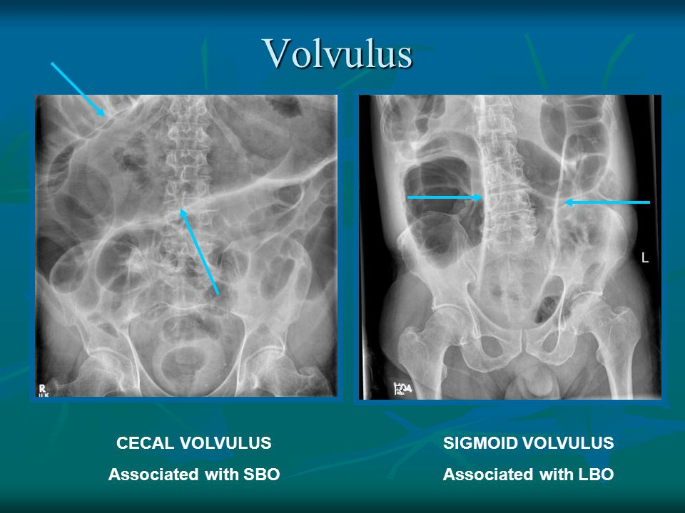 Volvulus CECAL VOLVULUS Associated with SBO SIGMOID VOLVULUS Associated with LBO