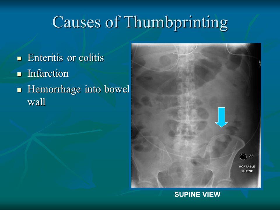 Causes of Thumbprinting Enteritis or colitis Enteritis or colitis Infarction Infarction Hemorrhage into bowel wall Hemorrhage into bowel wall SUPINE V