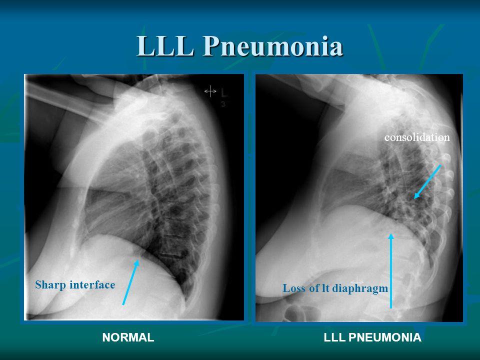 LLL Pneumonia NORMALLLL PNEUMONIA Loss of lt diaphragm Sharp interface consolidation
