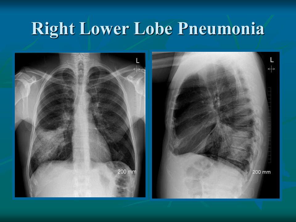 Right Lower Lobe Pneumonia