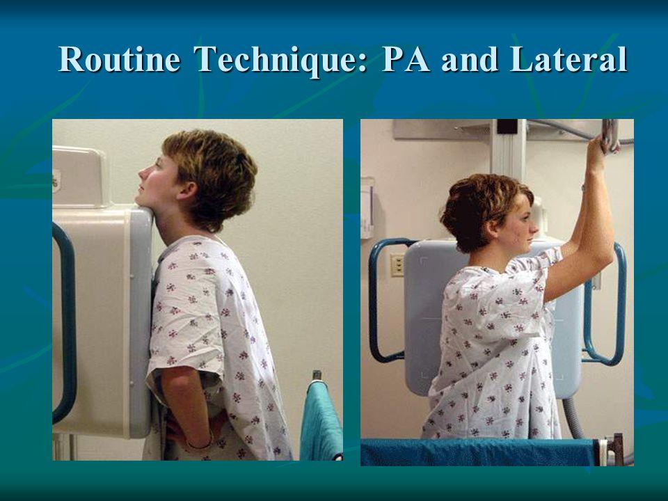LLL Pneumonia NORMAL LLL PNEUMONIA Loss of diaphragm Sharp interface Consolidation