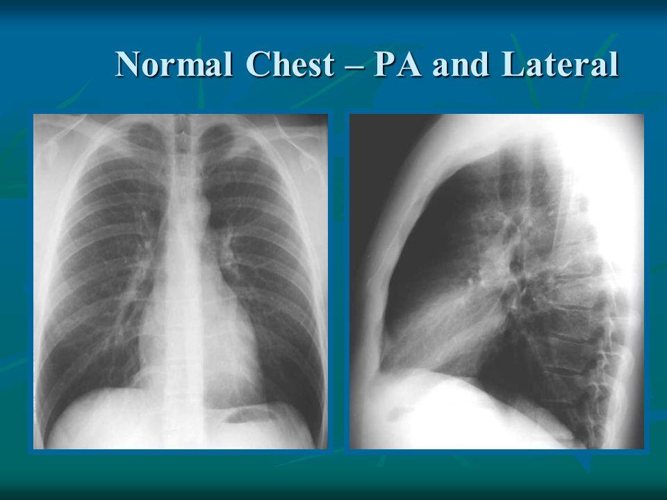 Interstitial Pneumonia NormalAbnormal