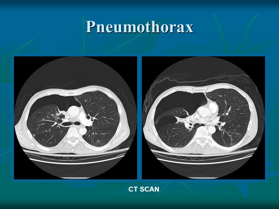 Pneumothorax CT SCAN