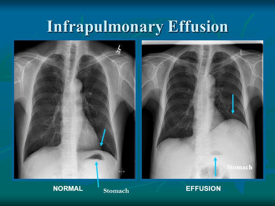 Infrapulmonary Effusion EFFUSIONNORMAL Stomach