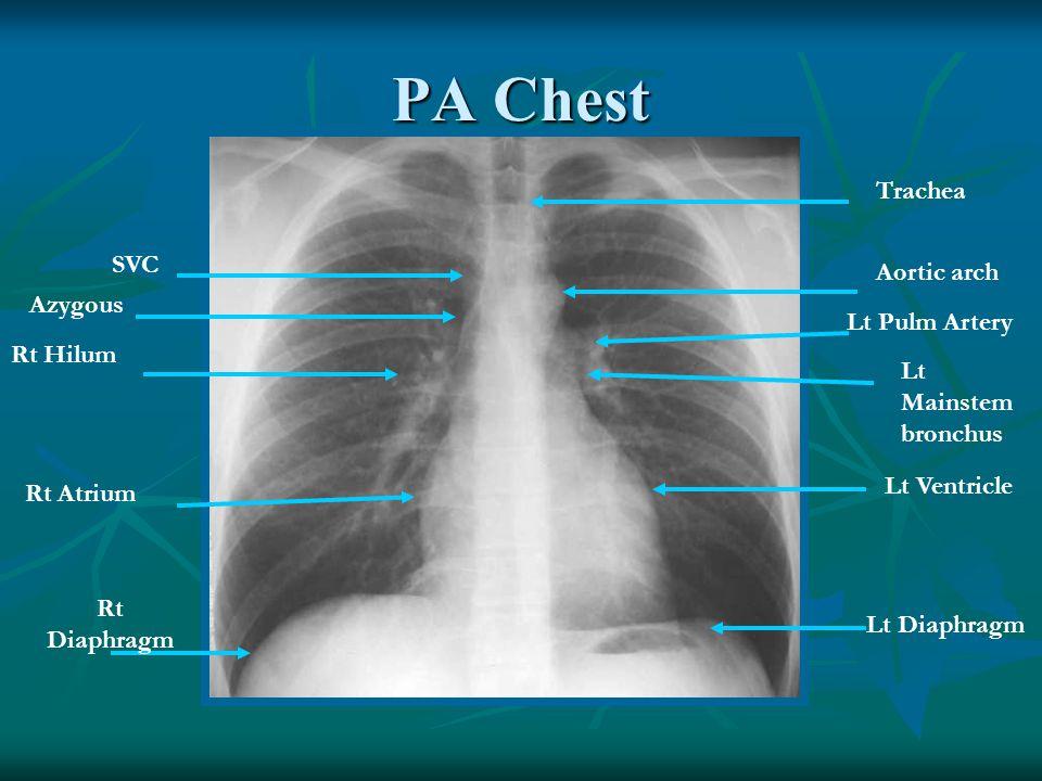 Lateral Chest Trachea Rt Pulm Artery Rt Ventricle Rt Diaphragm Aortic Arch Lt Pulm Artery Lt upper lobe bronchus Lt atrium Lt Ventricle Lt Diaphragm