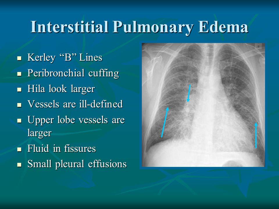 "Interstitial Pulmonary Edema Kerley ""B"" Lines Kerley ""B"" Lines Peribronchial cuffing Peribronchial cuffing Hila look larger Hila look larger Vessels a"