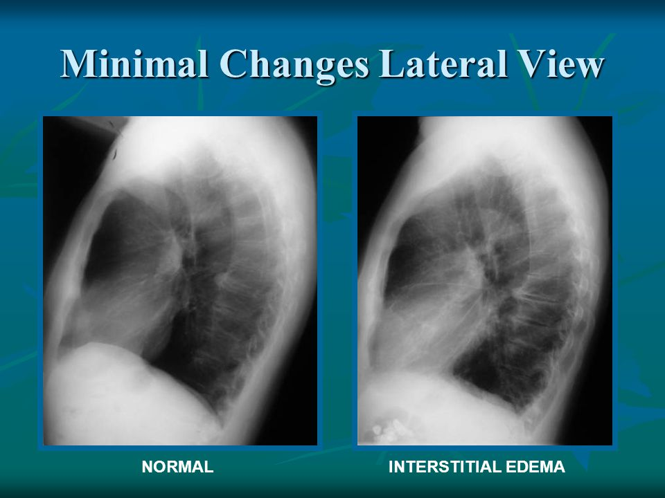 Minimal Changes Lateral View NORMALINTERSTITIAL EDEMA