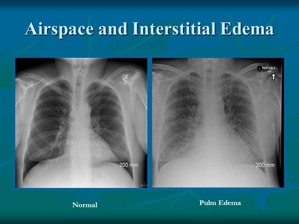 Airspace and Interstitial Edema Normal Pulm Edema