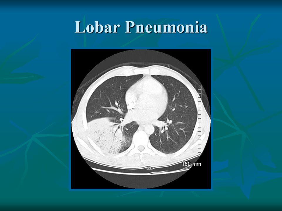 Lobar Pneumonia