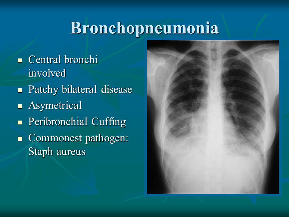 Bronchopneumonia Central bronchi involved Central bronchi involved Patchy bilateral disease Patchy bilateral disease Asymetrical Asymetrical Peribronc