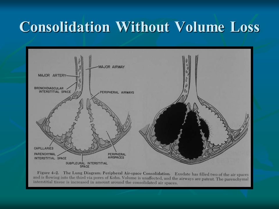 Renal Calculus on Intervenous Pyelogram DELAYED EXCRETION OF CONTRAST ON IVP Normal