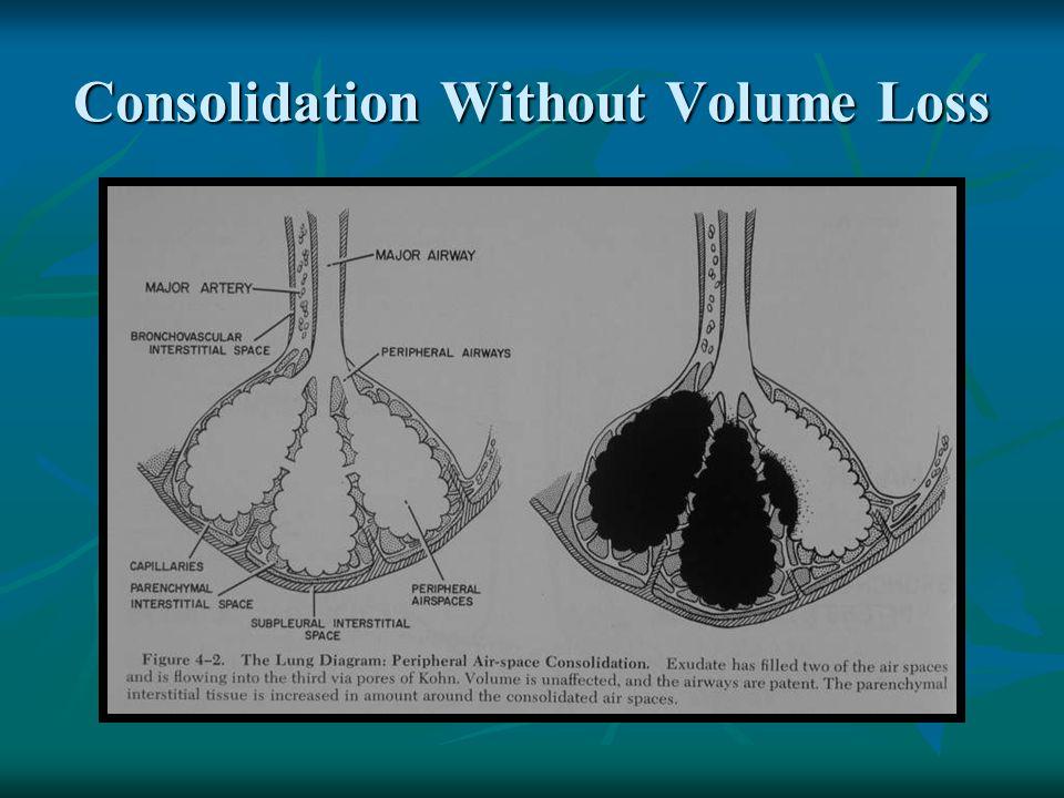 Lingular Pneumonia PA View Lateral