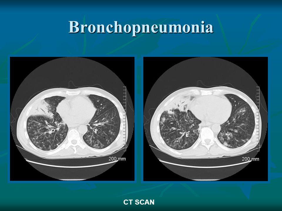 Bronchopneumonia CT SCAN