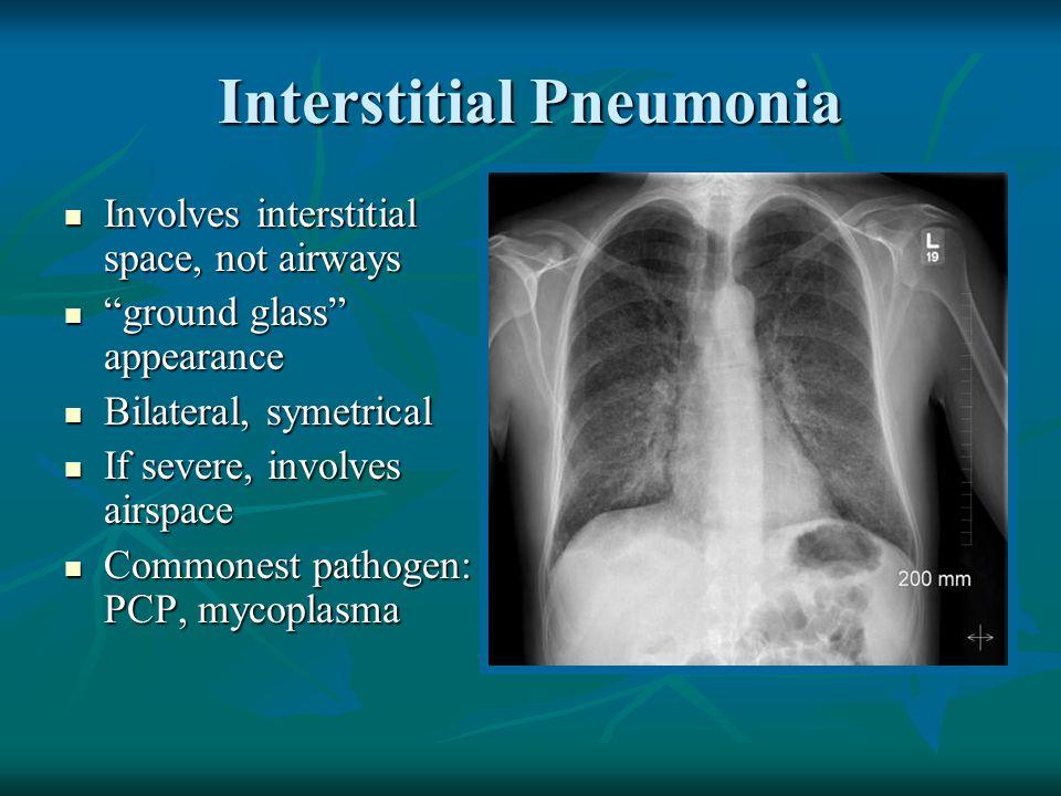 """Interstitial Pneumonia Involves interstitial space, not airways Involves interstitial space, not airways """"ground glass"""" appearance """"ground glass"""" appe"""