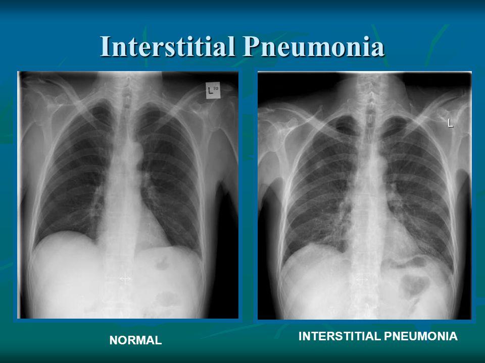 Interstitial Pneumonia NORMAL INTERSTITIAL PNEUMONIA
