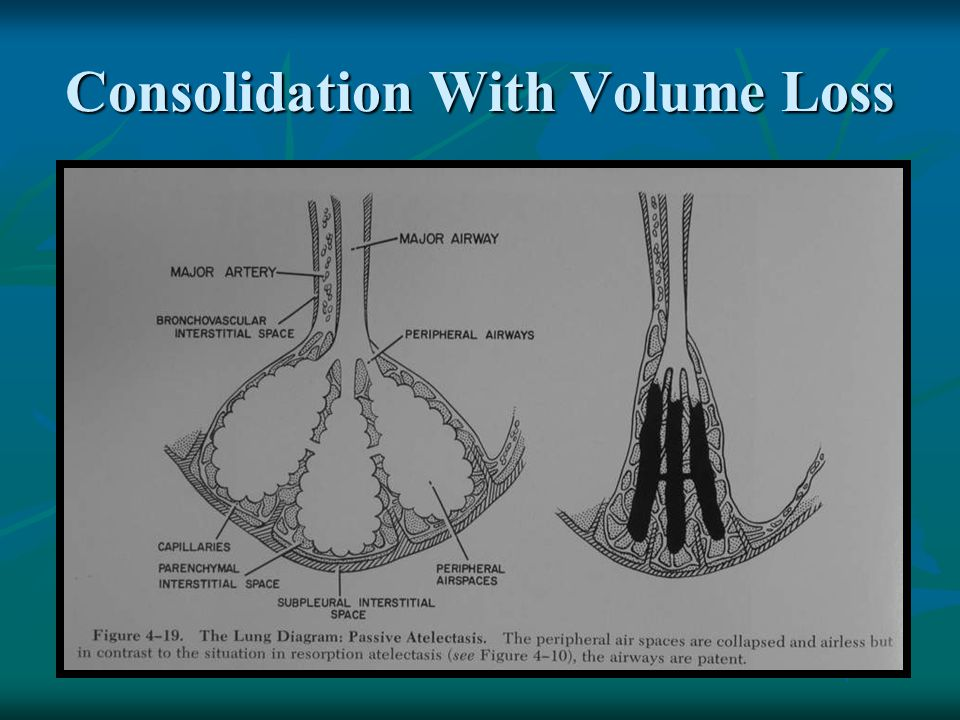 Consolidation Means solid lung Means solid lung Characteristics: Characteristics: Increased density Increased density Acinar shadow Acinar shadow Silhouette sign Silhouette sign Air bronchogram Air bronchogram