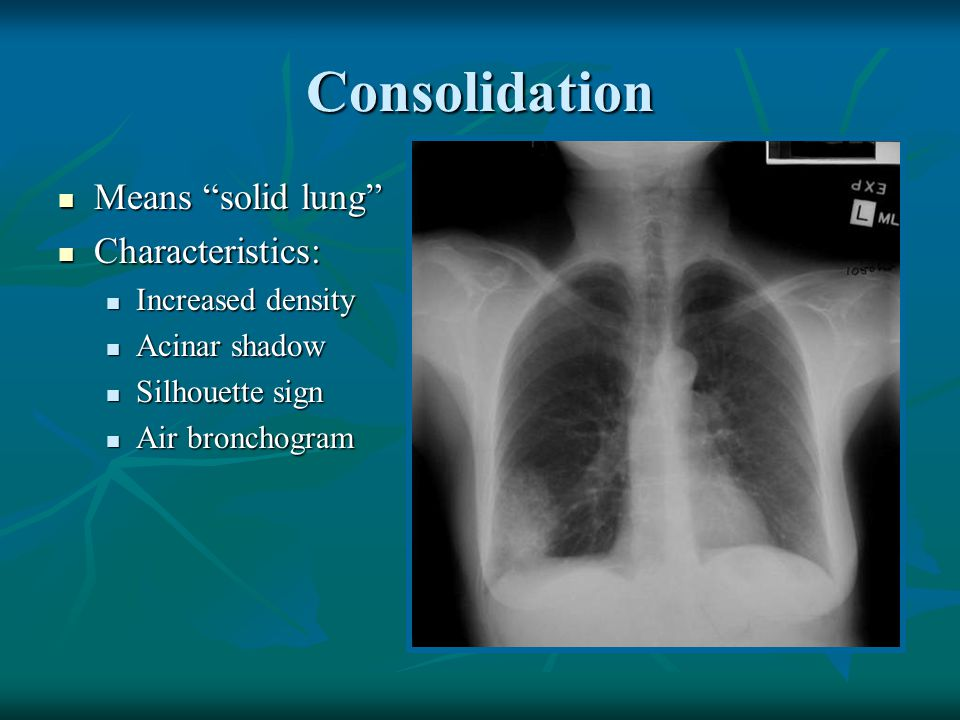 Complete collapse Tracheal shift Bronchus amputated Diaphragm