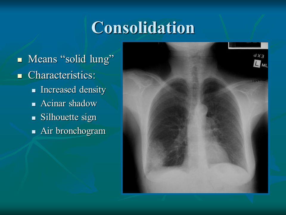 Emphysema - CT Black holes Bulla