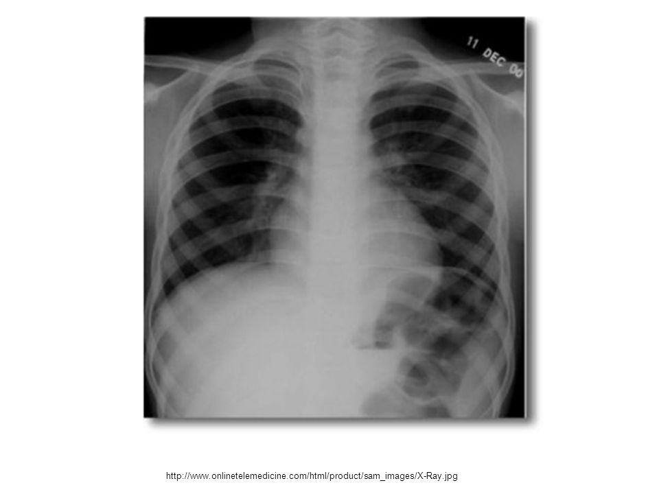 http://www.onlinetelemedicine.com/html/product/sam_images/X-Ray.jpg