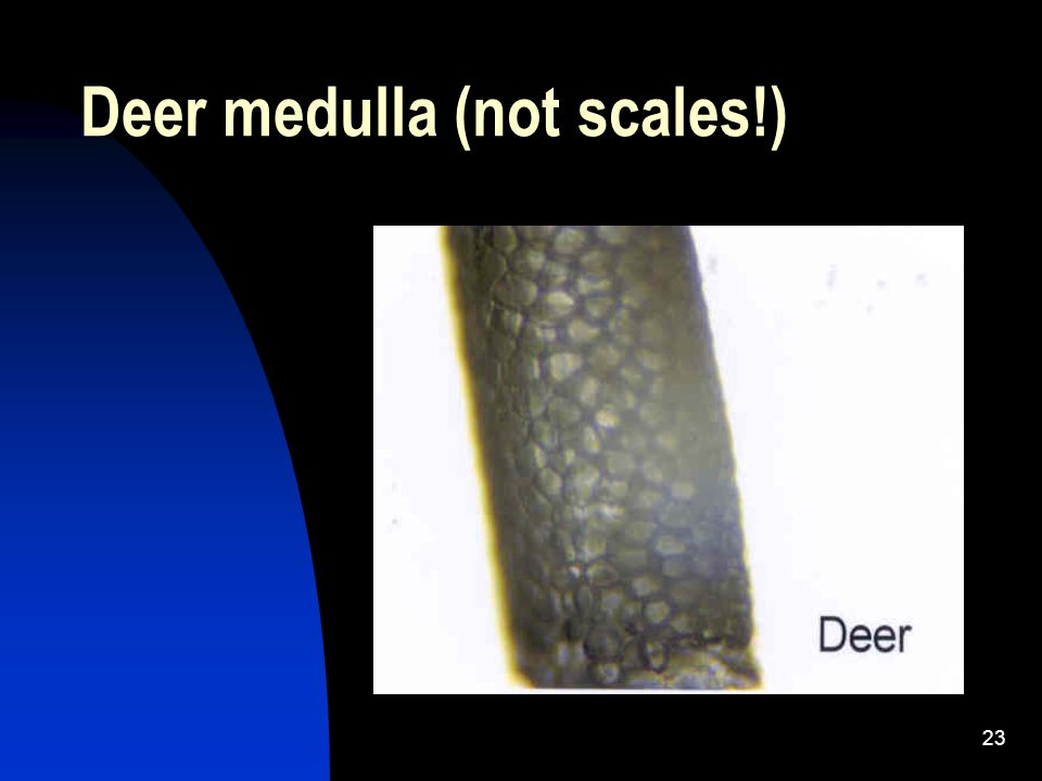 23 Deer medulla (not scales!)