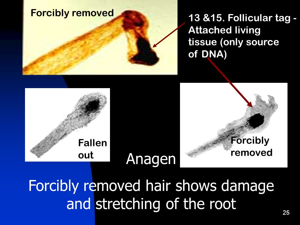 25 Anagen Forcibly removed hair shows damage and stretching of the root Fallen out Forcibly removed 13 &15.