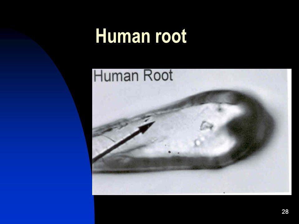 28 Human root