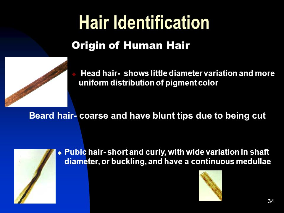 34 Hair Identification Origin of Human Hair u Head hair- shows little diameter variation and more uniform distribution of pigment color Beard hair- coarse and have blunt tips due to being cut u Pubic hair- short and curly, with wide variation in shaft diameter, or buckling, and have a continuous medullae