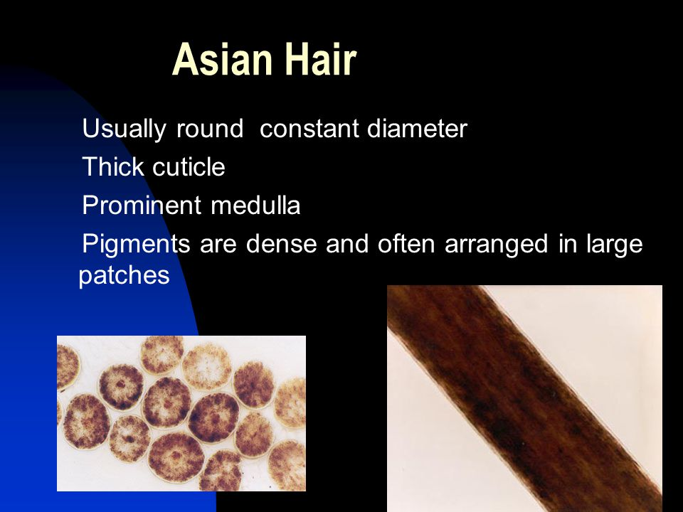 39 Asian Hair Usually round constant diameter Thick cuticle Prominent medulla Pigments are dense and often arranged in large patches