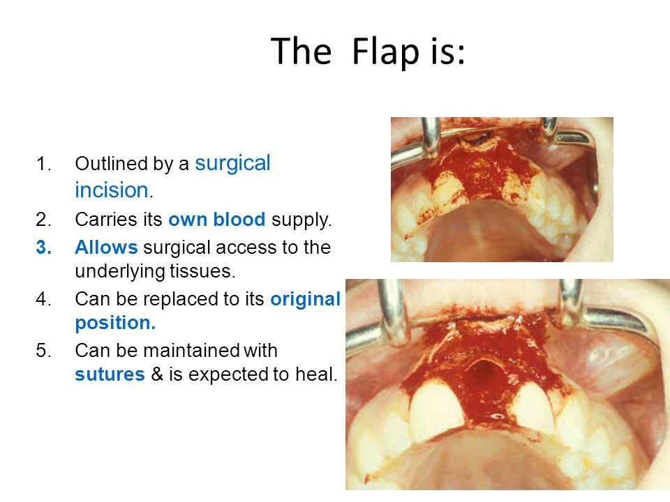 flaps must provide adequate exposure & promote rapid healing. Flaps
