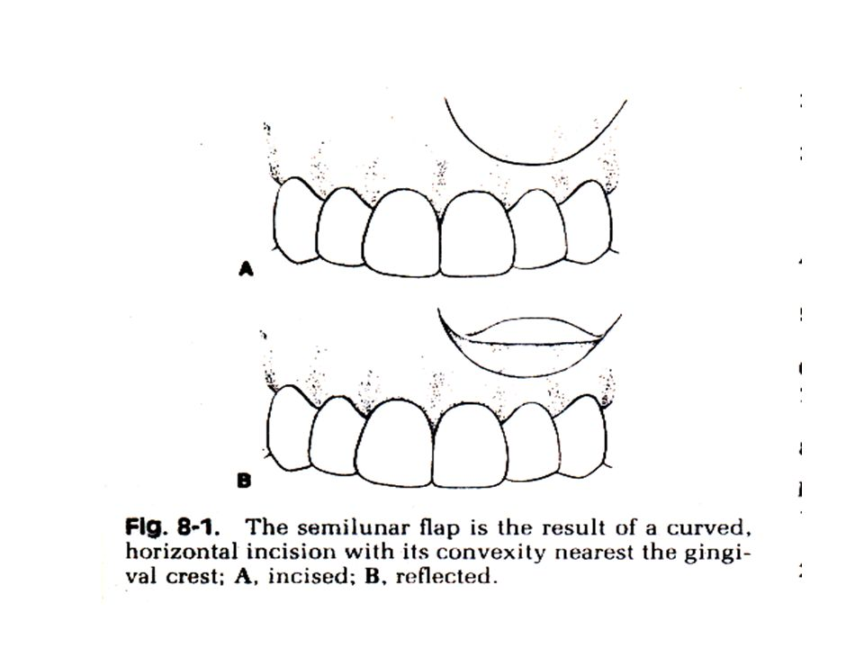 1. Semilunar flap : A curved, horizontal incision where the convex portion nearest to the gingival crest. The deepest part of the flap should be 5-10