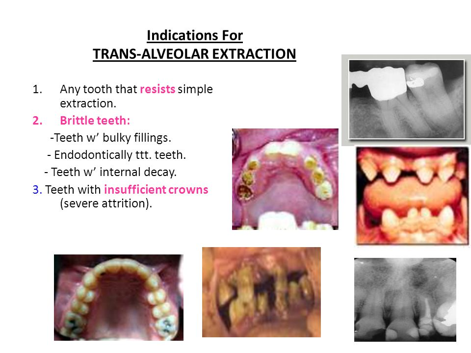 Indications For TRANS-ALVEOLAR EXTRACTION 1.Any tooth that resists simple extraction.