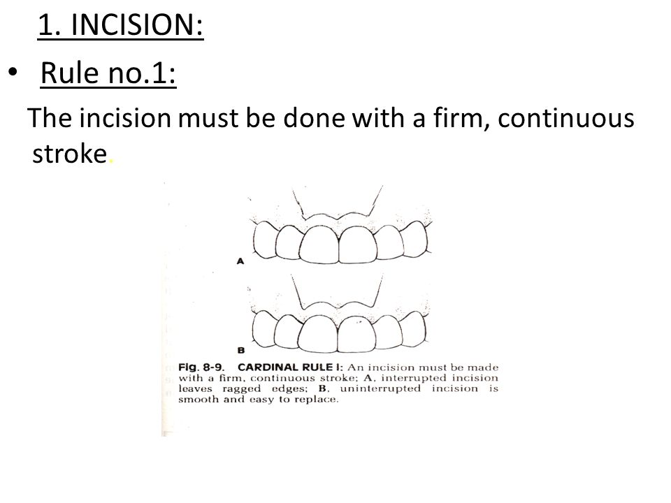 SURGICAL TECHNIQUE 1.INCISION 2.ELEVATION 3.RETRACTION 4.BONE REMOVAL 5.SURGICAL TASK 6.WOUND DEBRIDEMENT 7.WOUND CLOSURE