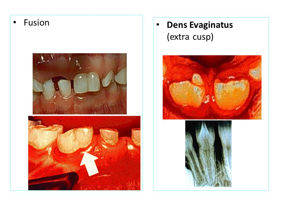 Dens in Dente (also called Dens Invaginatus) (tooth within a tooth) Dilaceration
