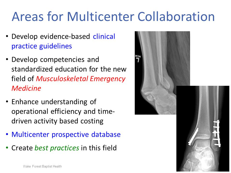 Wake Forest Baptist Health Areas for Multicenter Collaboration Develop evidence-based clinical practice guidelines Develop competencies and standardized education for the new field of Musculoskeletal Emergency Medicine Enhance understanding of operational efficiency and time- driven activity based costing Multicenter prospective database Create best practices in this field